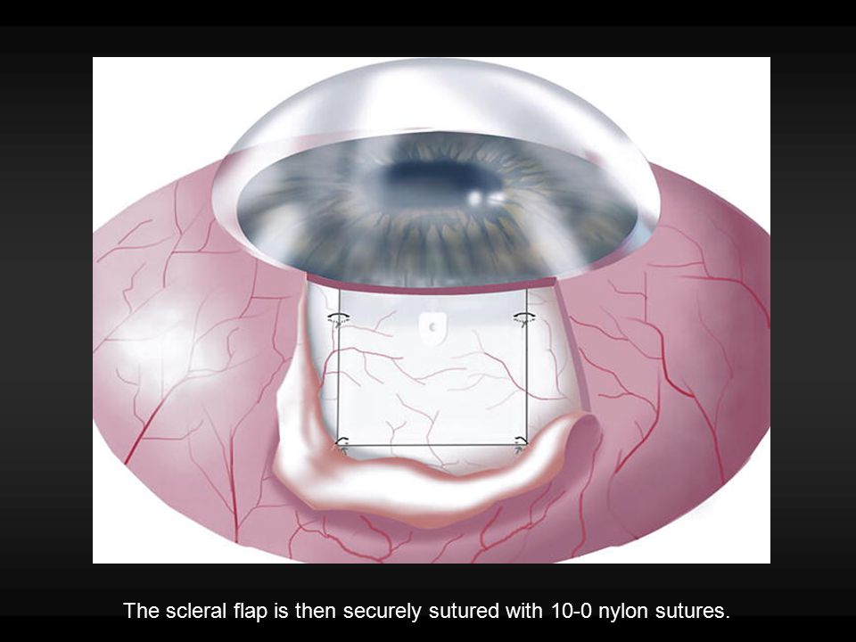 The scleral flap is then securely sutured with 10-0 nylon sutures.