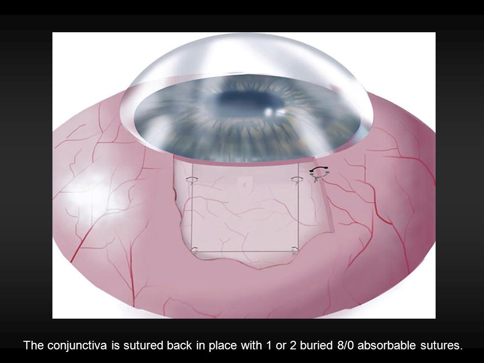 The conjunctiva is sutured back in place with 1 or 2 buried 8/0 absorbable sutures.