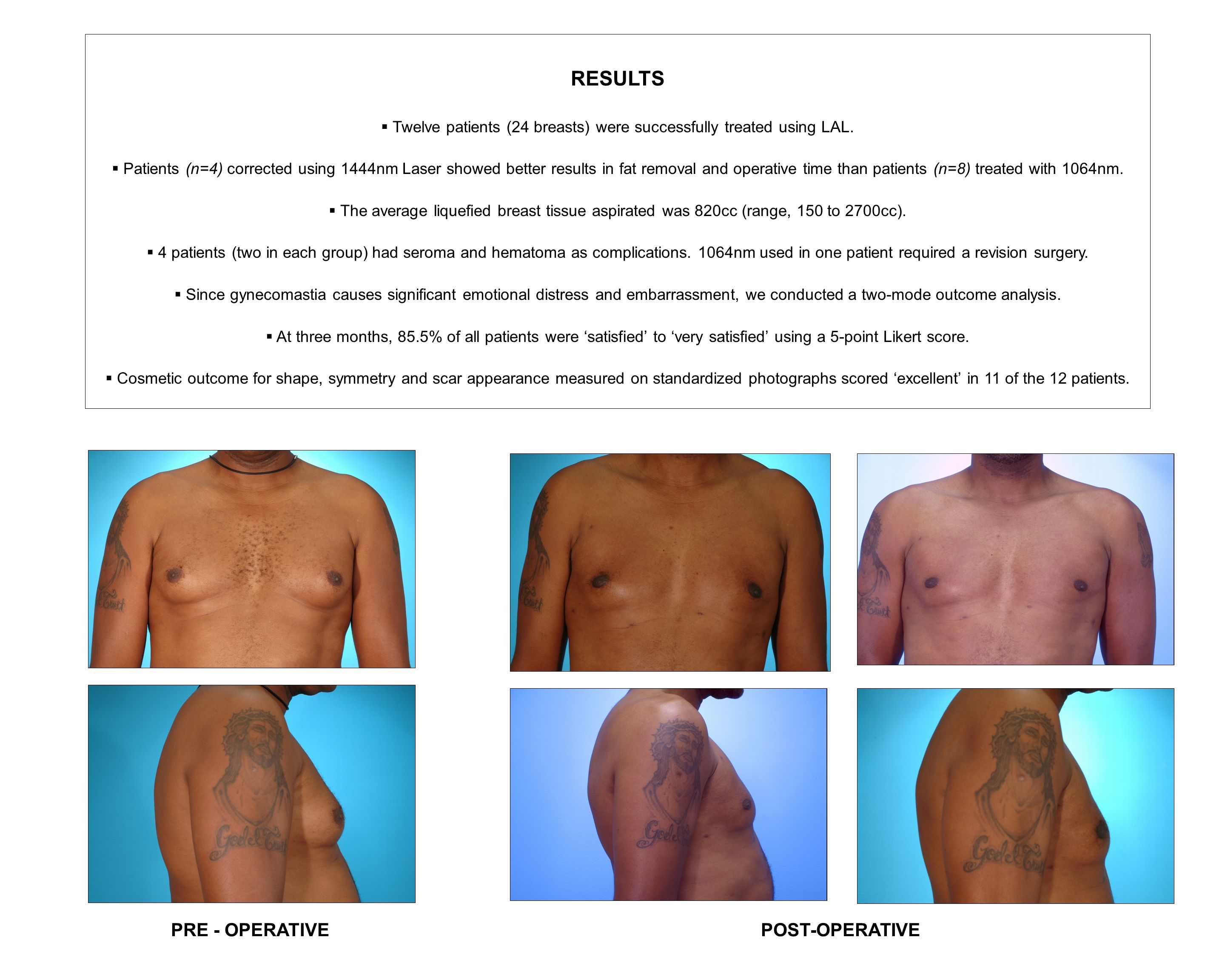 Twelve patients (24 breasts) were successfully treated using LAL.