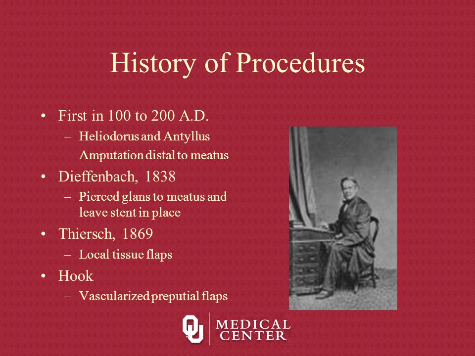 History of Procedures First in 100 to 200 A.D. Dieffenbach, 1838