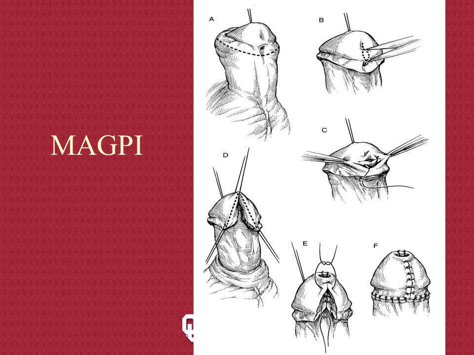MAGPI