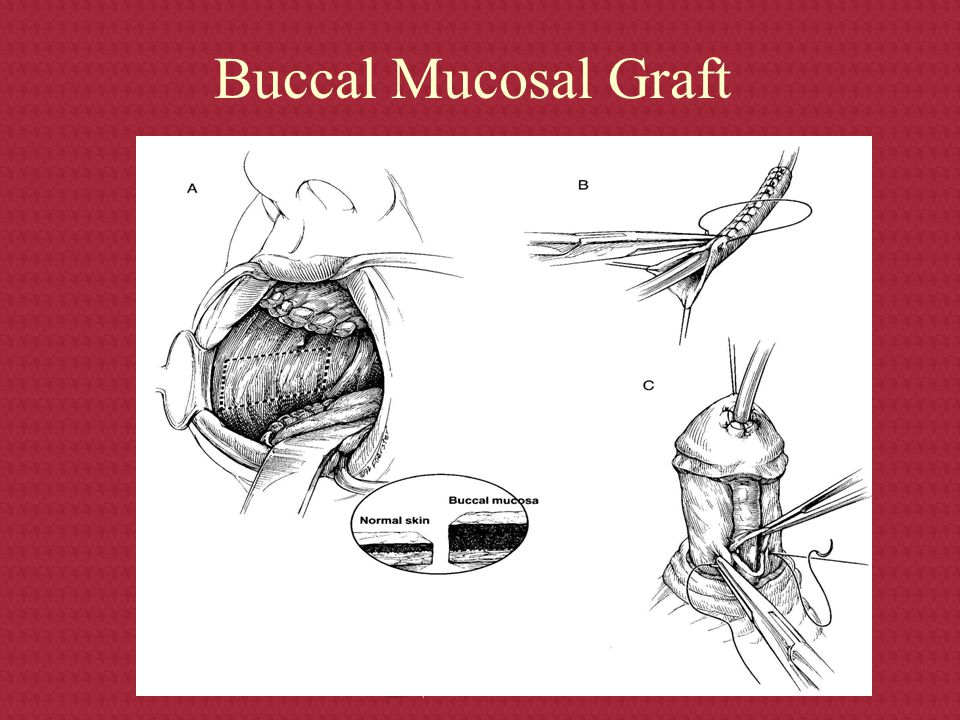 Buccal Mucosal Graft