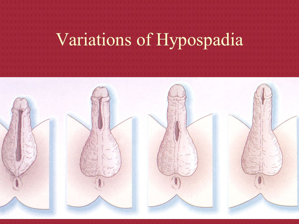 Variations of Hypospadia