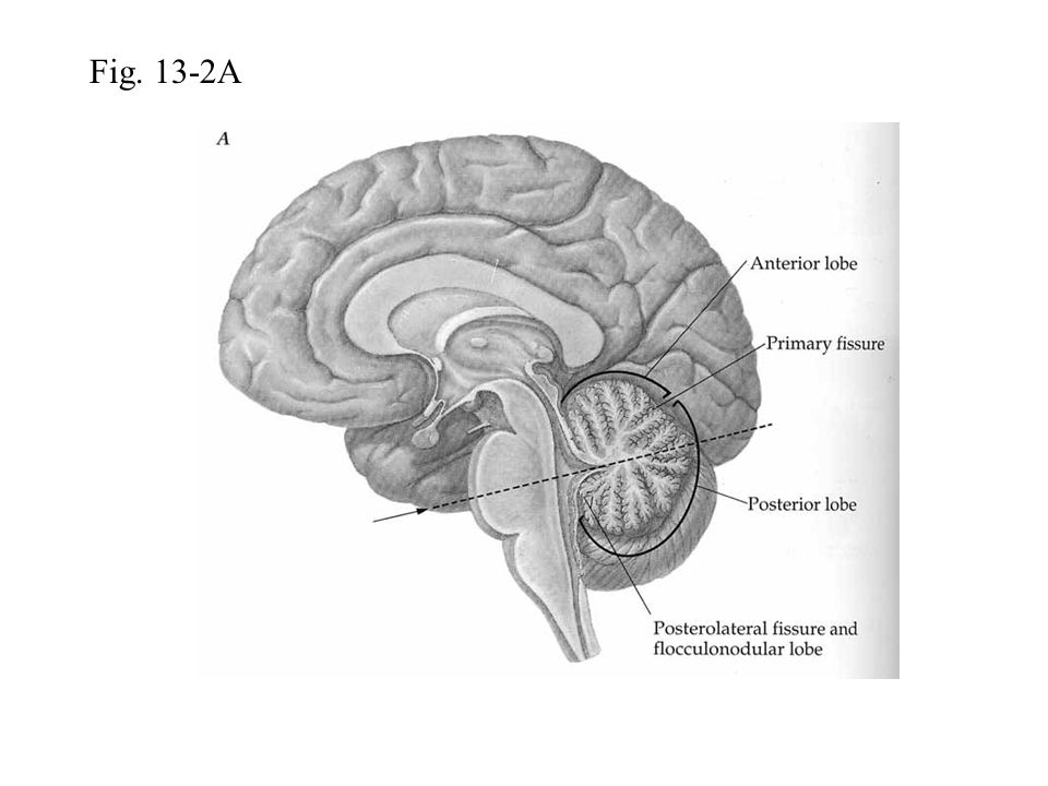 Fig. 13-2A