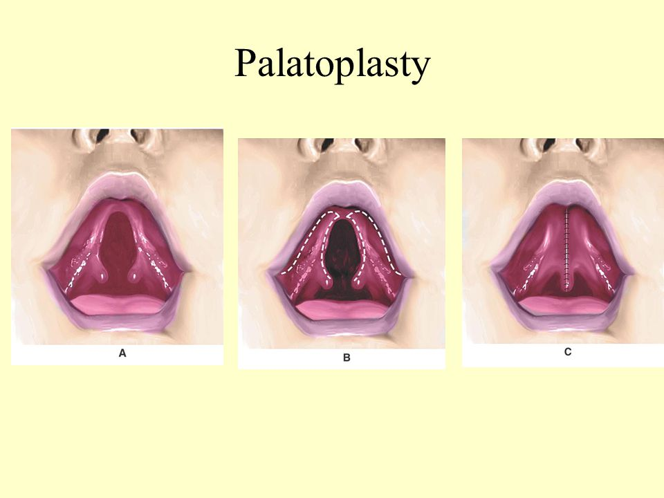 Palatoplasty A. Bilateral Defect B. Dissection C Closure