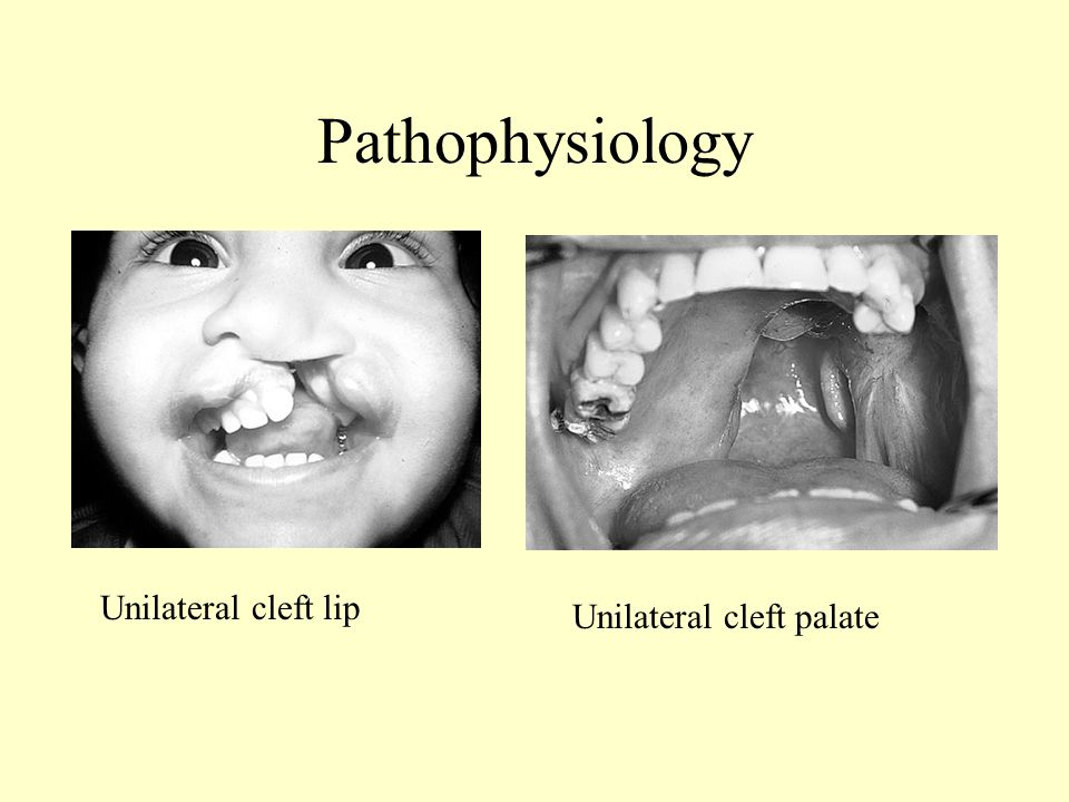 Pathophysiology Unilateral cleft lip Unilateral cleft palate