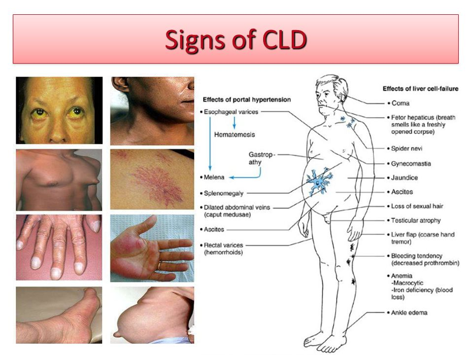 Signs of CLD