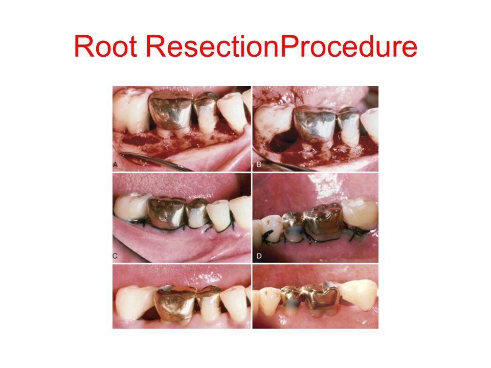 Root ResectionProcedure