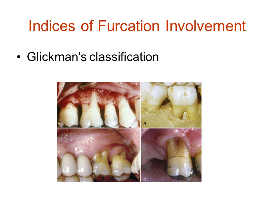 Indices of Furcation Involvement