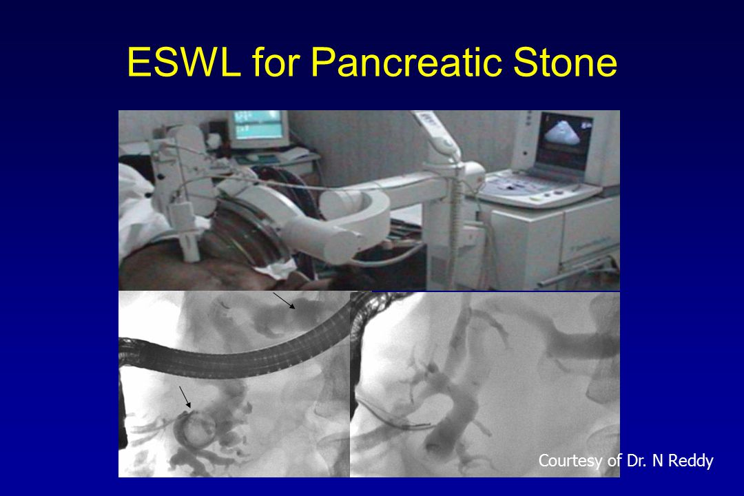 ESWL for Pancreatic Stone