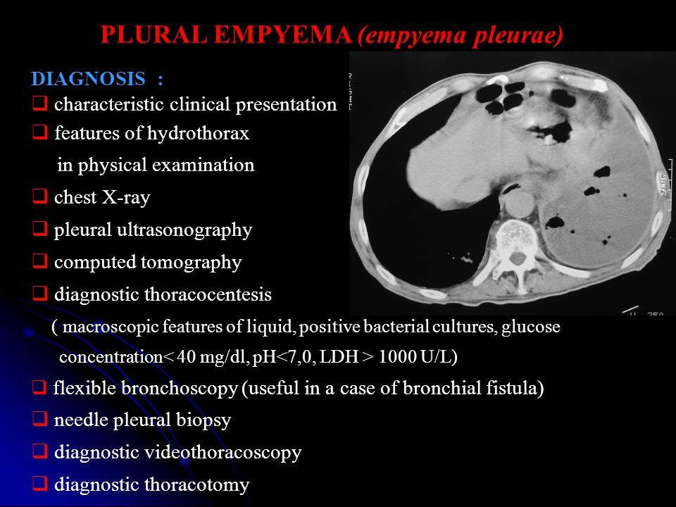 PLURAL EMPYEMA (empyema pleurae)