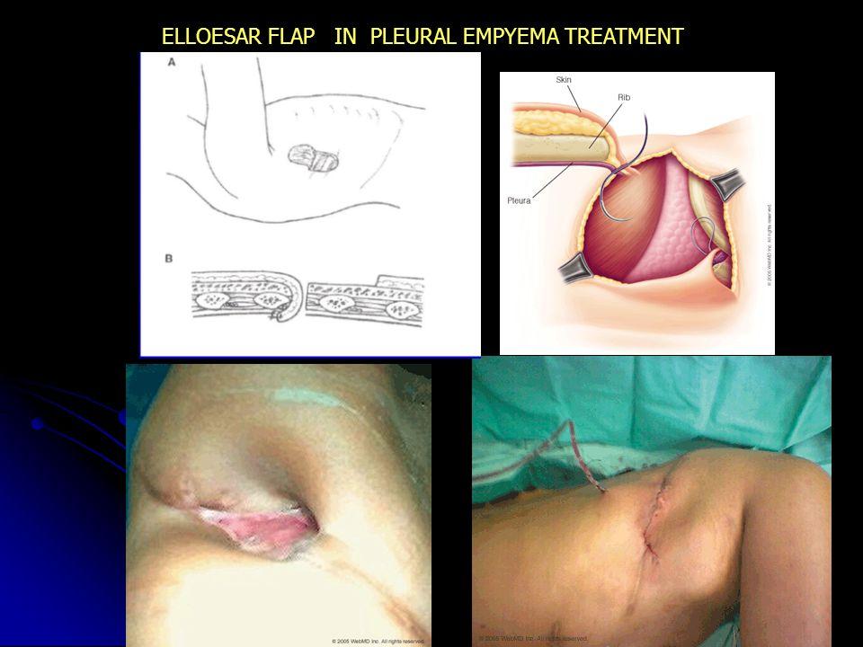 ELLOESAR FLAP IN PLEURAL EMPYEMA TREATMENT