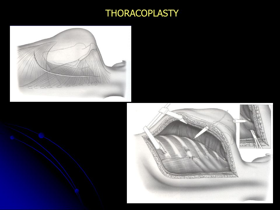 THORACOPLASTY
