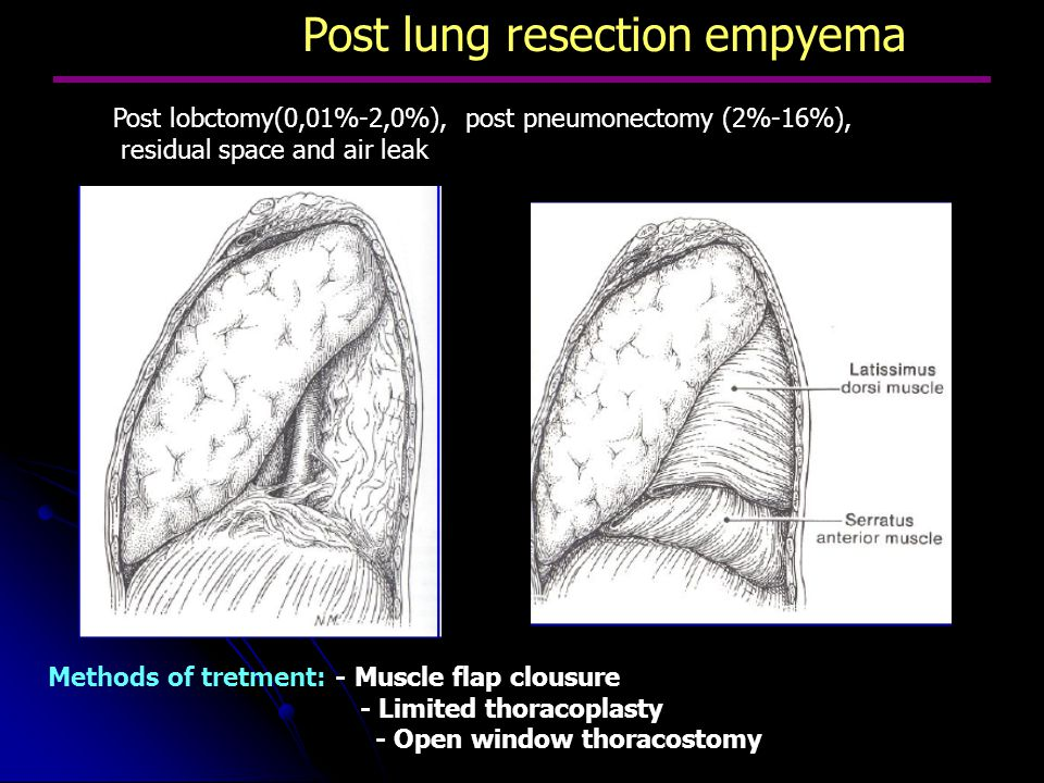 Post lung resection empyema