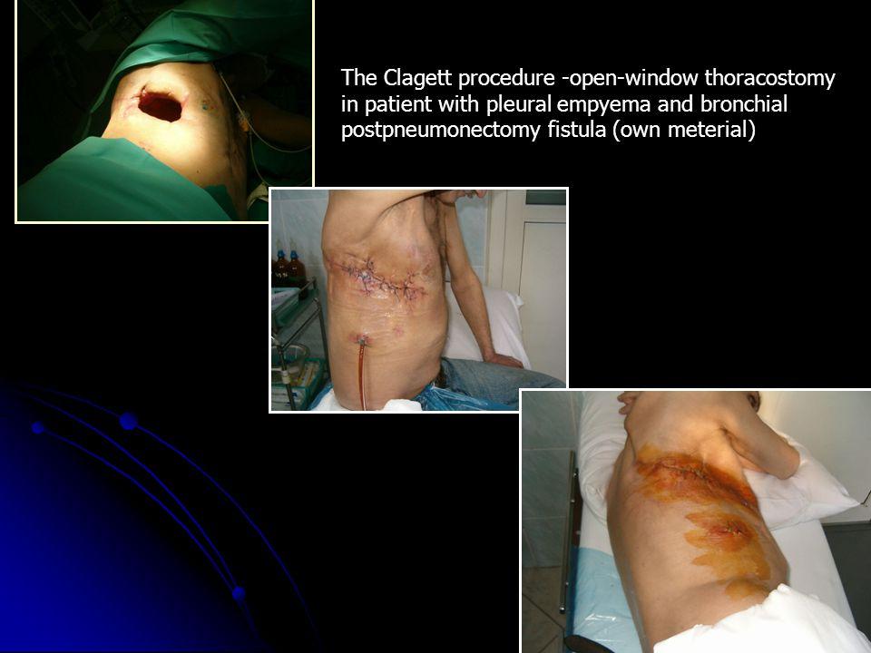 The Clagett procedure -open-window thoracostomy