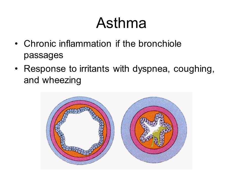 Asthma Chronic inflammation if the bronchiole passages