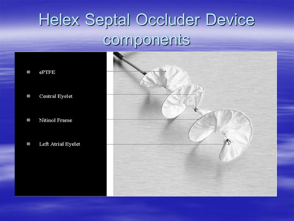 Helex Septal Occluder Device components