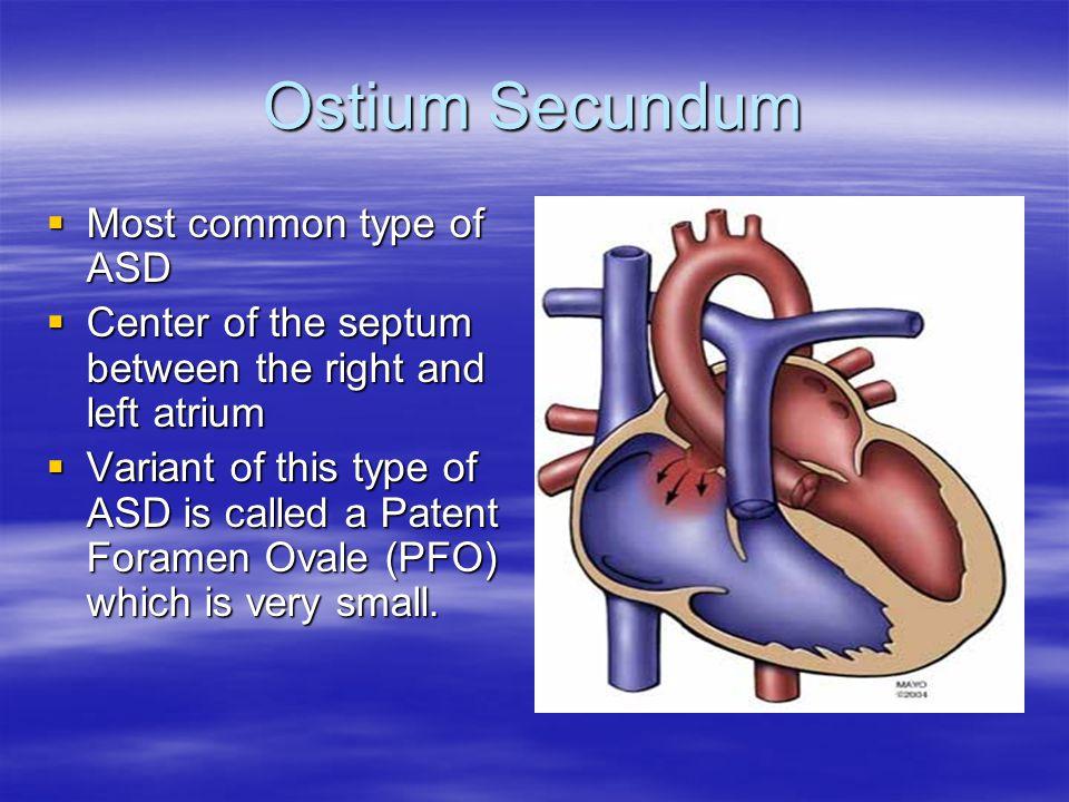Ostium Secundum Most common type of ASD