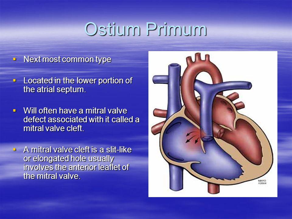 Ostium Primum Next most common type