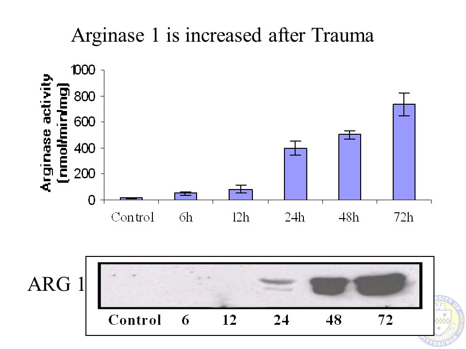 Arginase 1 is increased after Trauma