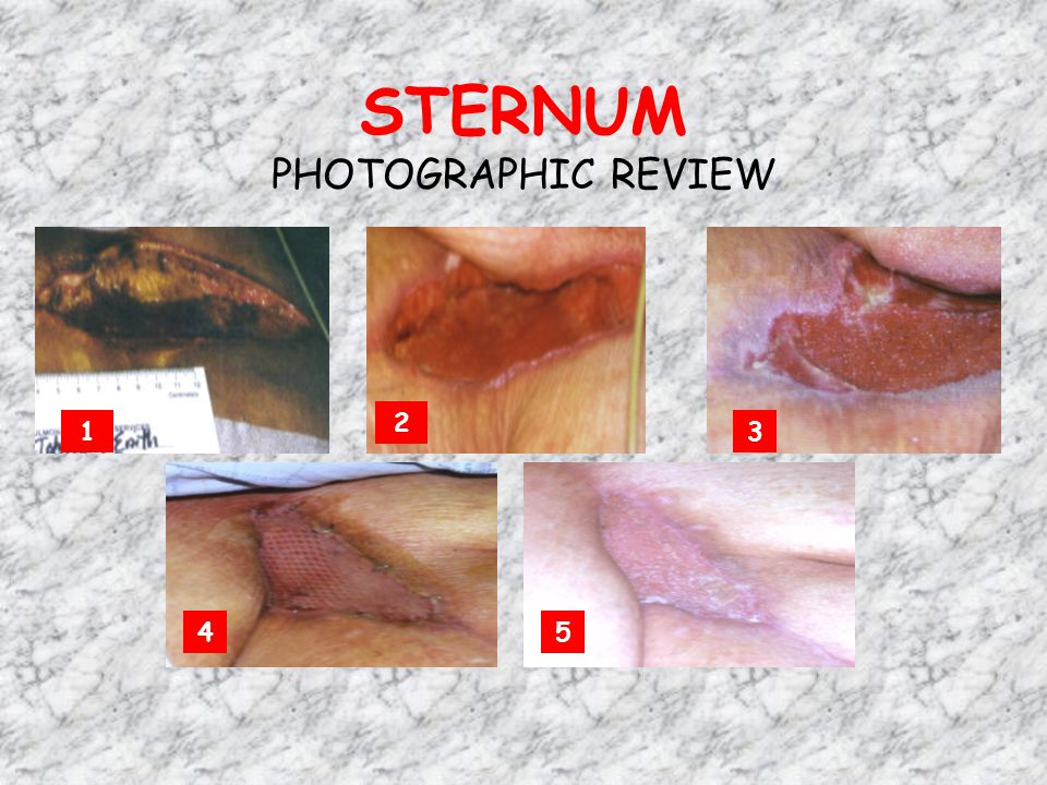 STERNUM PHOTOGRAPHIC REVIEW
