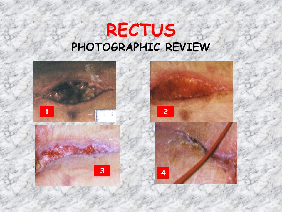 RECTUS PHOTOGRAPHIC REVIEW