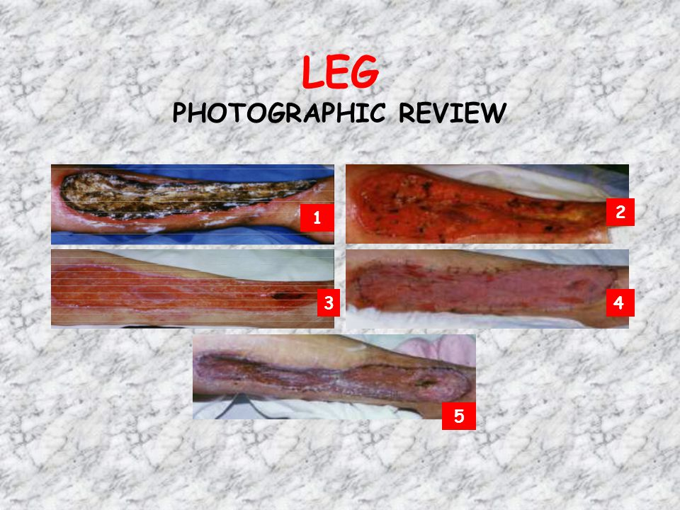 LEG PHOTOGRAPHIC REVIEW