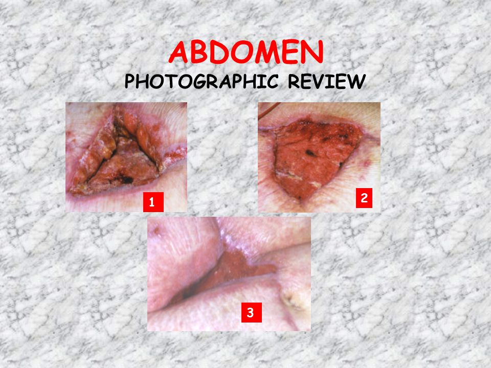 ABDOMEN PHOTOGRAPHIC REVIEW