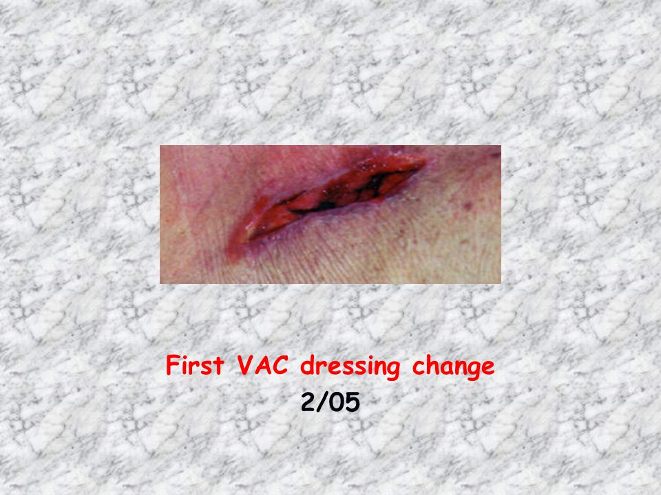 First VAC dressing change