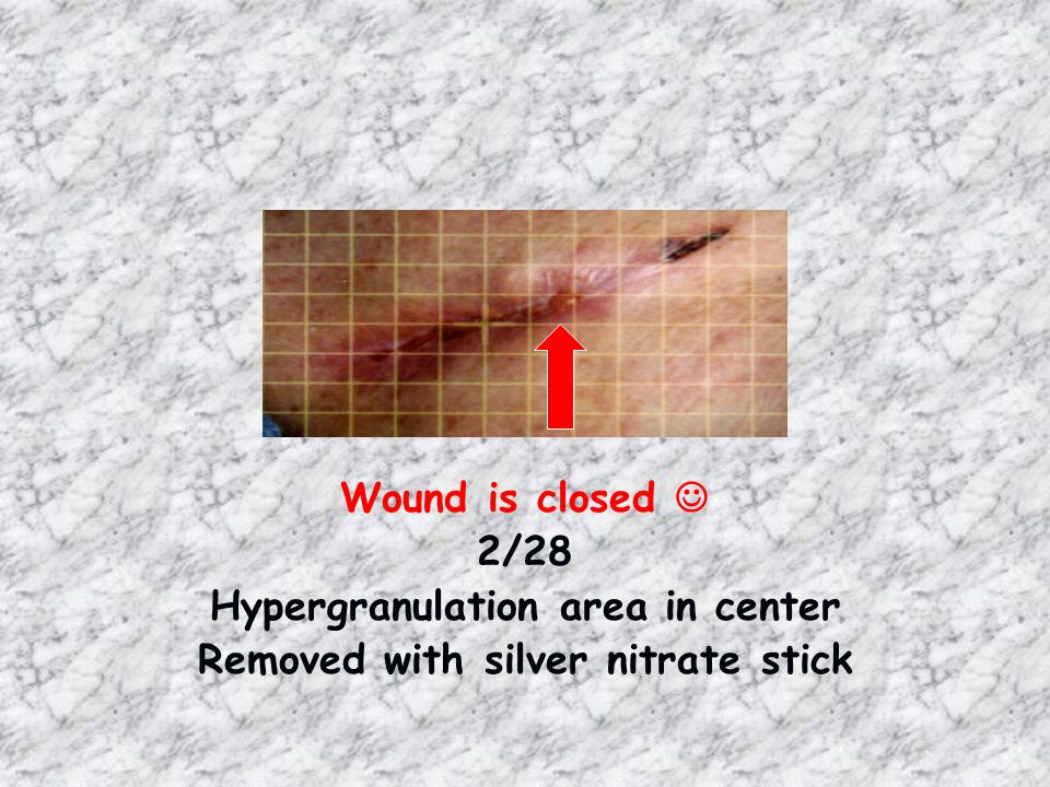 Hypergranulation area in center Removed with silver nitrate stick