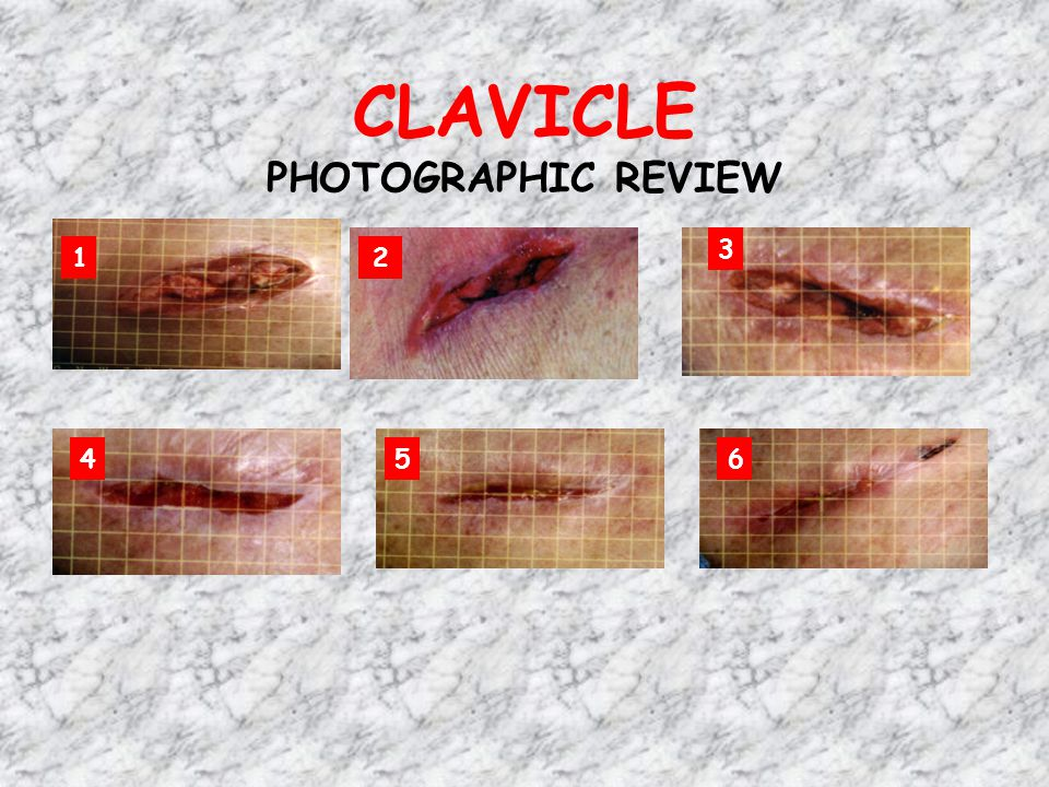 CLAVICLE PHOTOGRAPHIC REVIEW