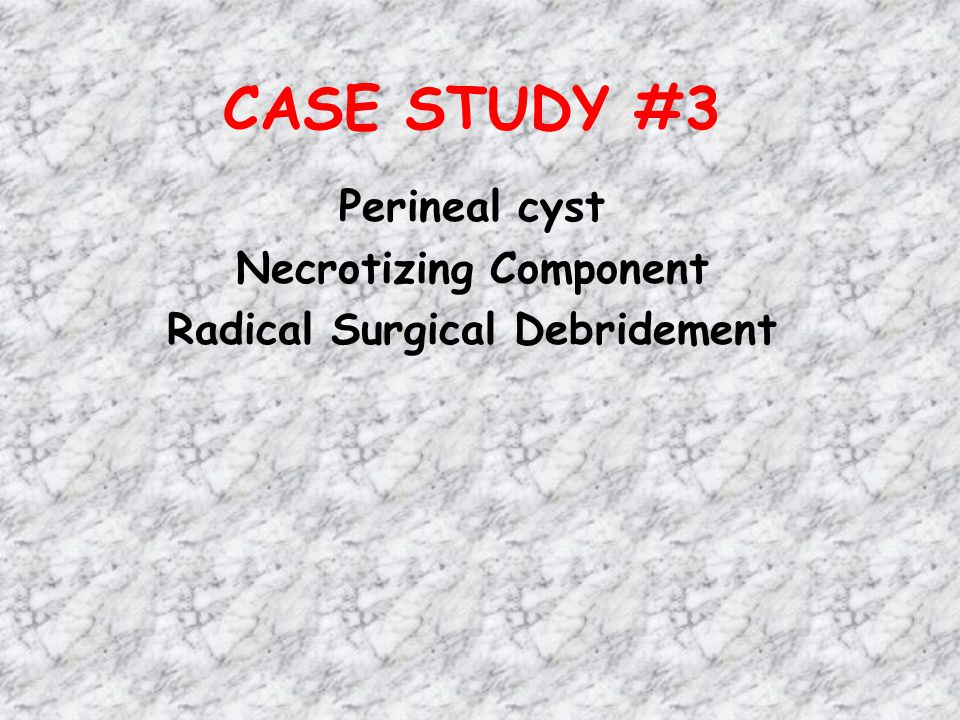 Perineal cyst Necrotizing Component Radical Surgical Debridement
