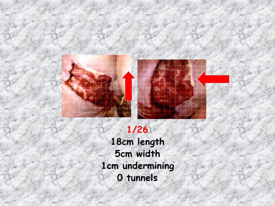 1/26 18cm length 5cm width 1cm undermining 0 tunnels