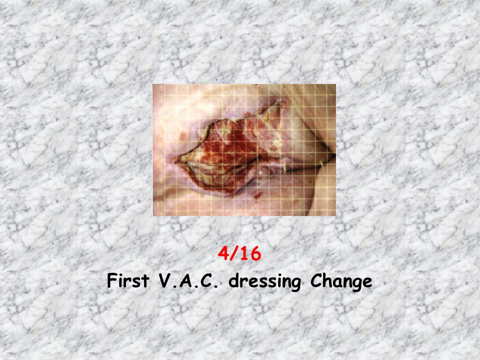 First V.A.C. dressing Change