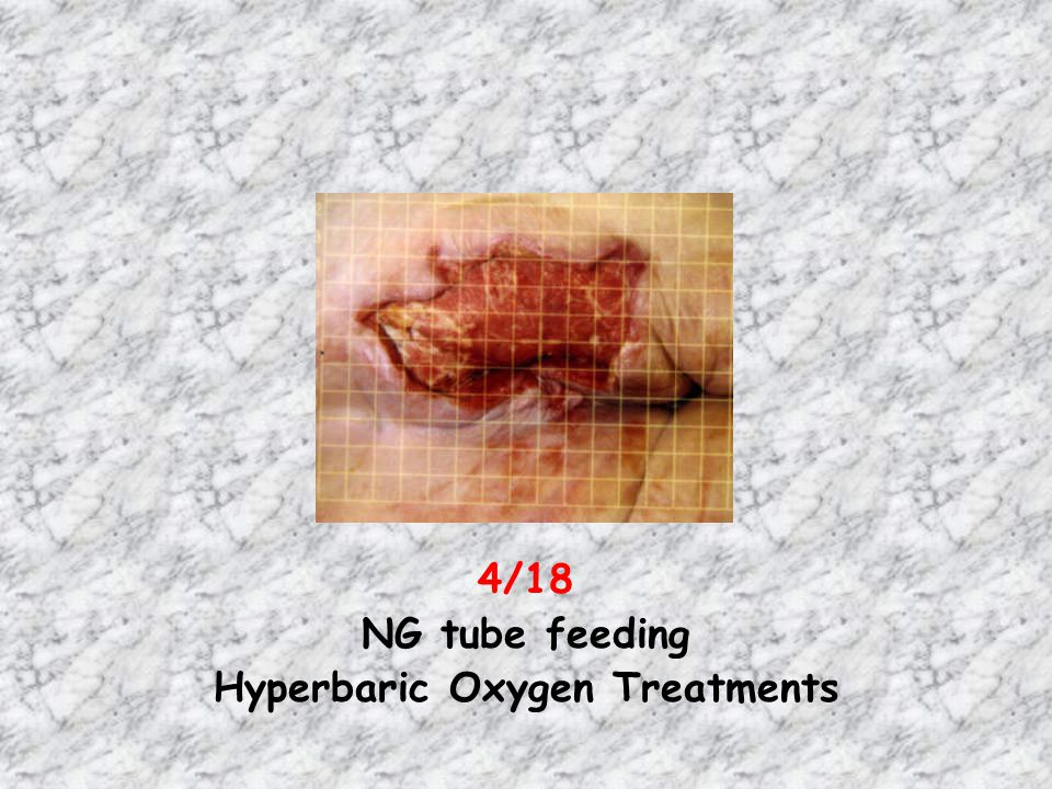 Hyperbaric Oxygen Treatments
