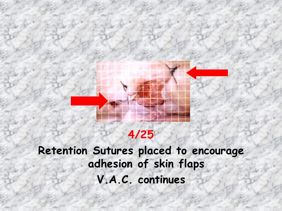 Retention Sutures placed to encourage adhesion of skin flaps