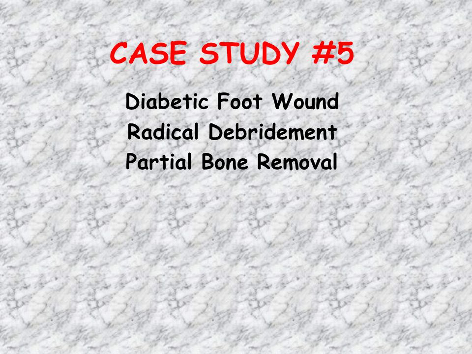 Diabetic Foot Wound Radical Debridement Partial Bone Removal
