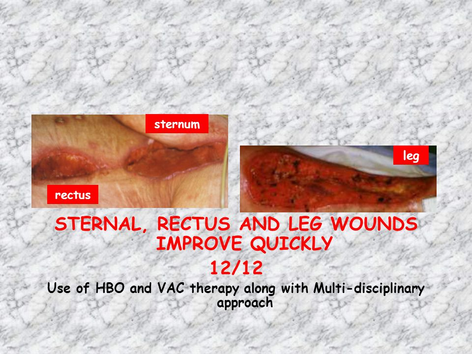 STERNAL, RECTUS AND LEG WOUNDS IMPROVE QUICKLY 12/12