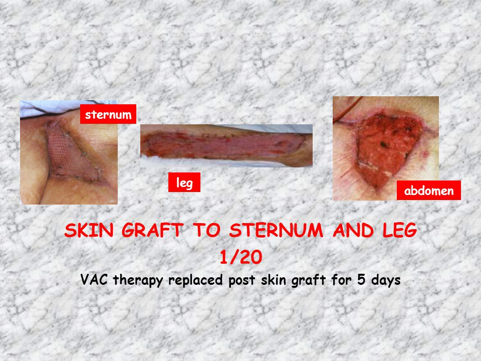 SKIN GRAFT TO STERNUM AND LEG 1/20