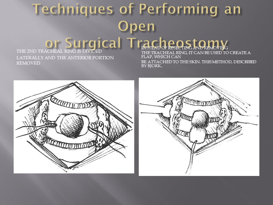Techniques of Performing an Open or Surgical Tracheostomy