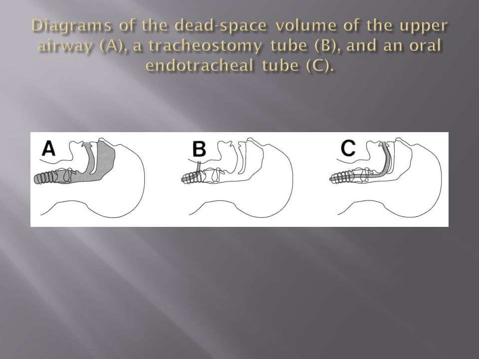 Diagrams of the dead-space volume of the upper airway (A), a tracheostomy tube (B), and an oral endotracheal tube (C).