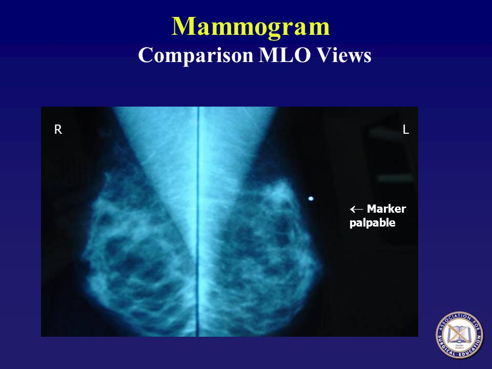 Mammogram Comparison MLO Views