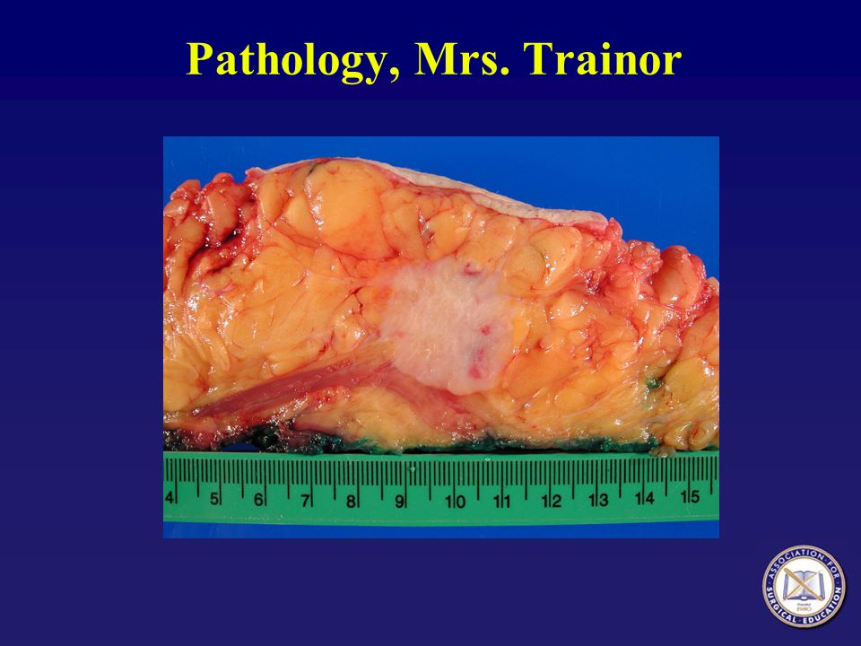 Pathology, Mrs. Trainor