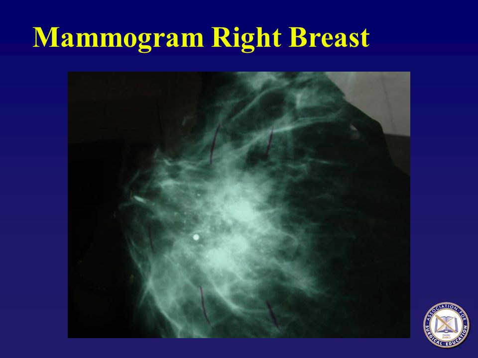 Mammogram Right Breast