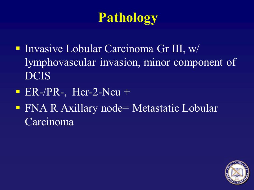 Pathology Invasive Lobular Carcinoma Gr III, w/ lymphovascular invasion, minor component of DCIS. ER-/PR-, Her-2-Neu +