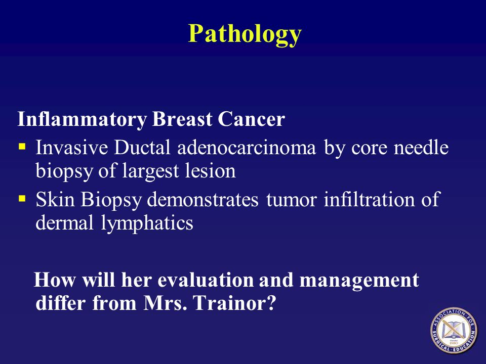 Pathology Inflammatory Breast Cancer