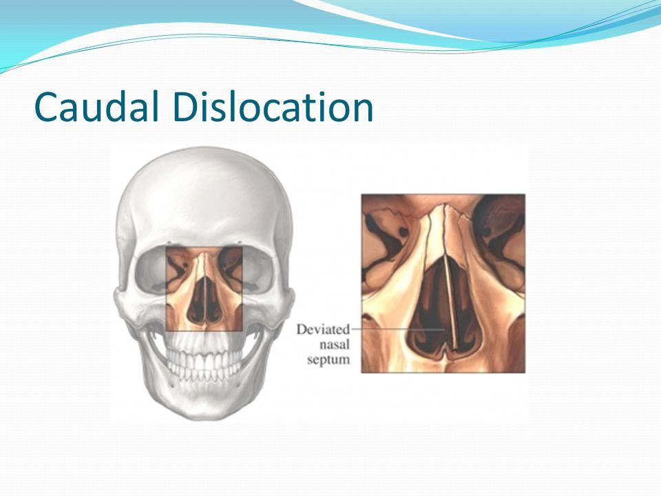 Caudal Dislocation