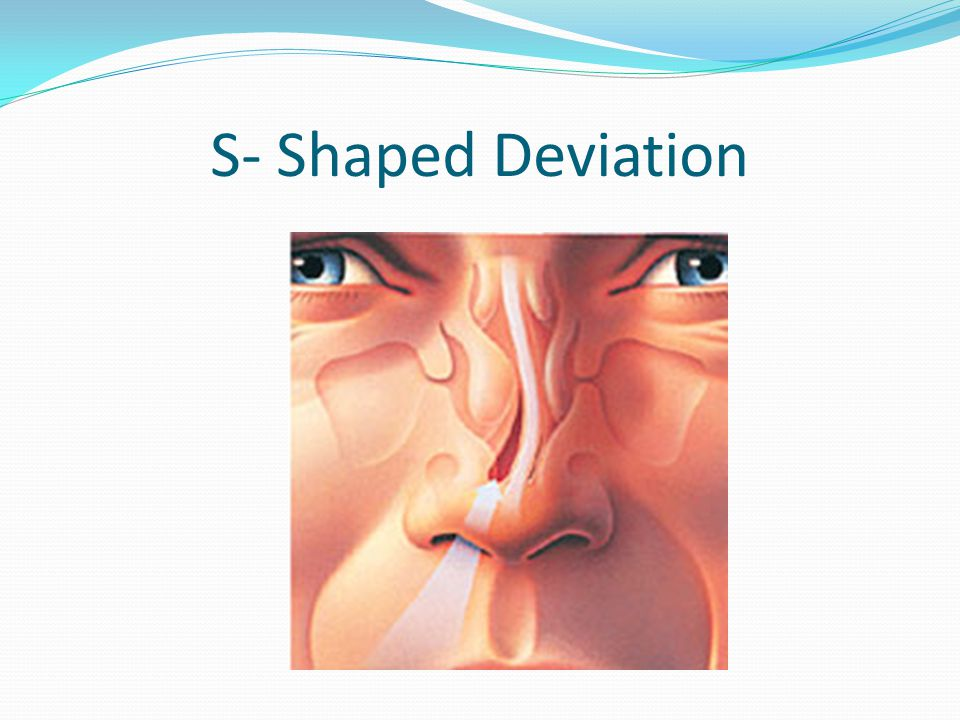 S- Shaped Deviation