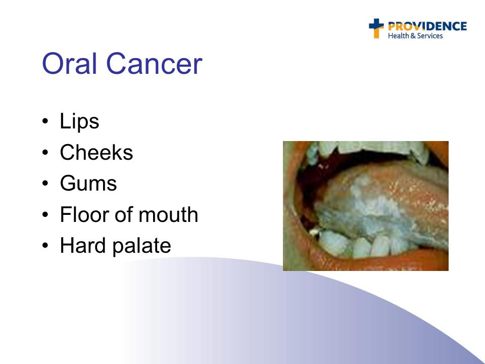 Approaches to assessment and treatment of patients with for Floor of mouth cancer