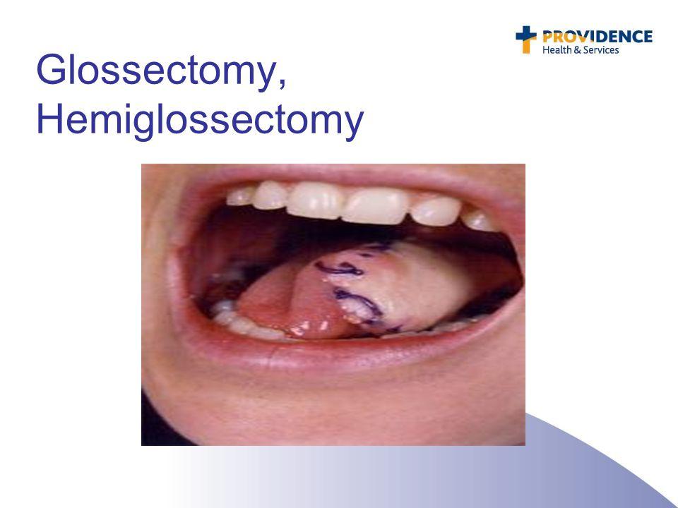 Glossectomy, Hemiglossectomy